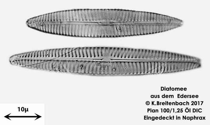 Bild 14 Diatomeen aus dem Edersee, verschiedene Aufnahmen, Art: vermutlich Navicula spec.