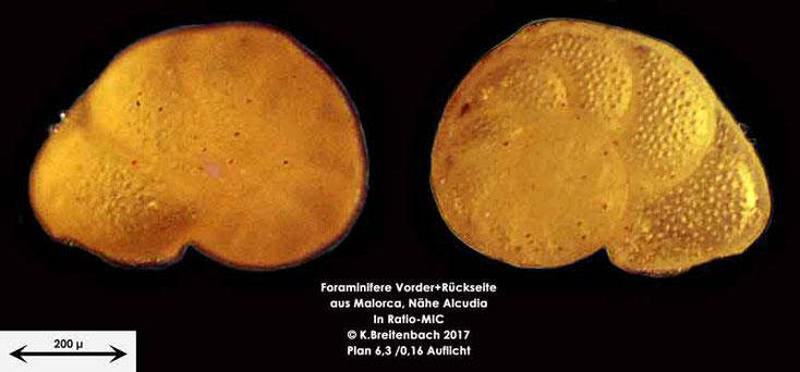 Bild 10 Foraminiferen aus Mallorca; Gattung: Ammonia spec.