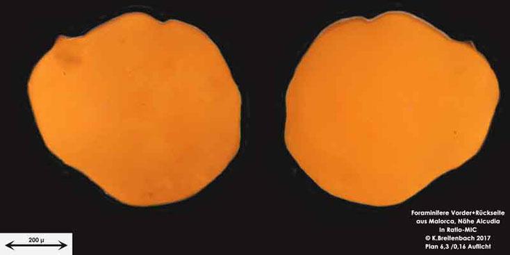 Bild 17 Foraminiferen aus Mallorca; Gattung: Unbestimmt von mir