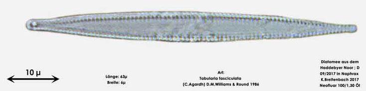 Bild 25 Diatomee aus dem Haddebyer Noor in Schleswig Holstein; Art: Tabularia fasciculata (C.Agardh) D.M.Williams & Round 1986