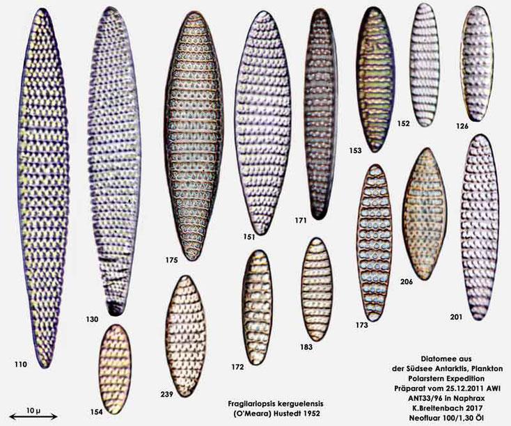 Bild 9 Diatomee aus dem anarktischen Ozean Präparat: ANT33/96; Art: Zusammenfassung: Fragilariopsis kerguelensis (O'Meara) Hustedt 1952