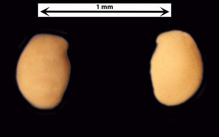 Foraminifere oder Ostrakode aus dem Sand vom Badestrand der Stadt Naha, Art unbekannt