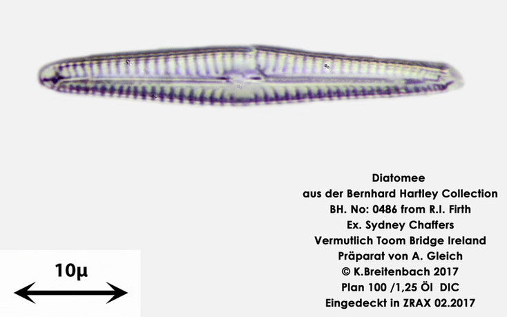 Bild 23 Diatomee aus Toomebridge Irland, Süßwasser Art: unbekannt