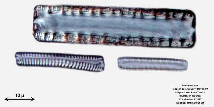 Bild 15 Diatomeen aus Slapton Ley, Devon UK; Gattung: Diatoma spec. Gürtelansicht