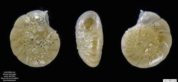 Foraminifere aus Radoy, Norwegen. Art: Ammonia beccarii (Linné 1758 )