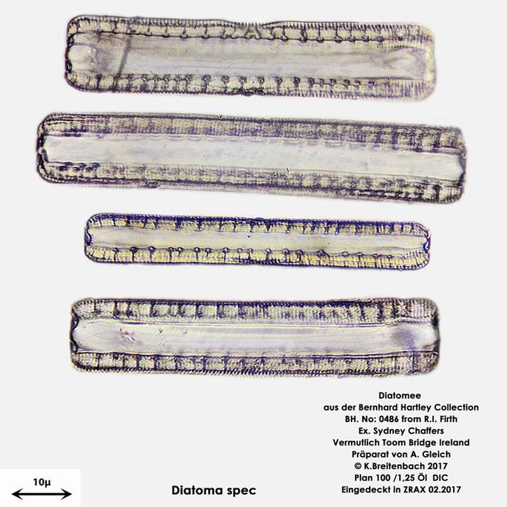 Bild 6 Diatomee aus Toomebridge Irland, Süßwasser Art: vermutlich Diatoma spec.