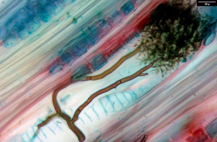 Birke - Weißbirke, Radialschnitt - in den Tracheiden sind die Pilzhyphen zu erkennen. (400fache Vergr.)