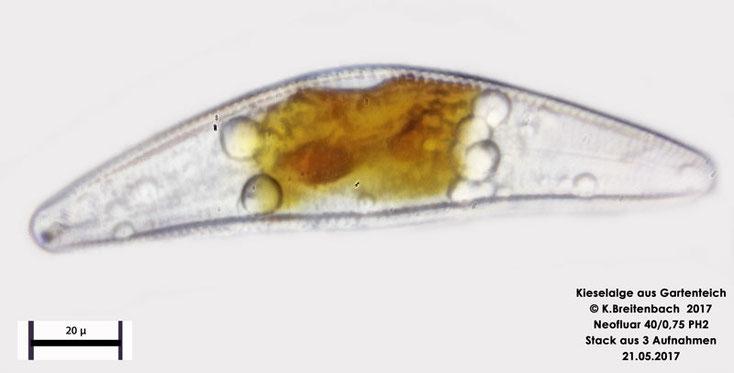 Bild 12 Alge aus unserem Gartenteich, Kieselalge vermutlich Cymbella spec.