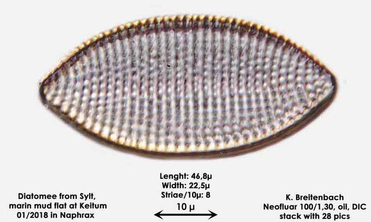 Bild 42 Diatomee aus Sylt/Keitum Watt, Art: Achnanthes sp