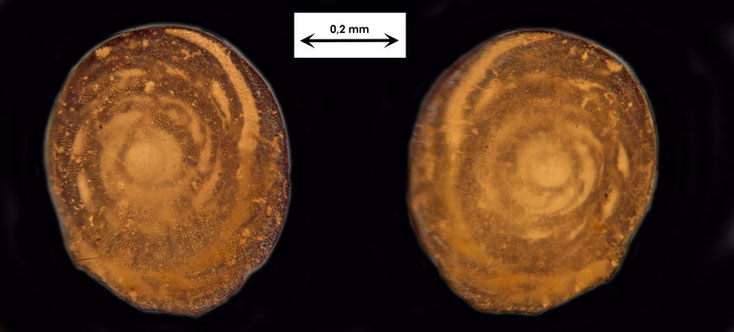 Okinawa/Japan, Foraminifere oder Ostrakode aus dem Sand vom Badestrand der Stadt Naha, Art unbekannt