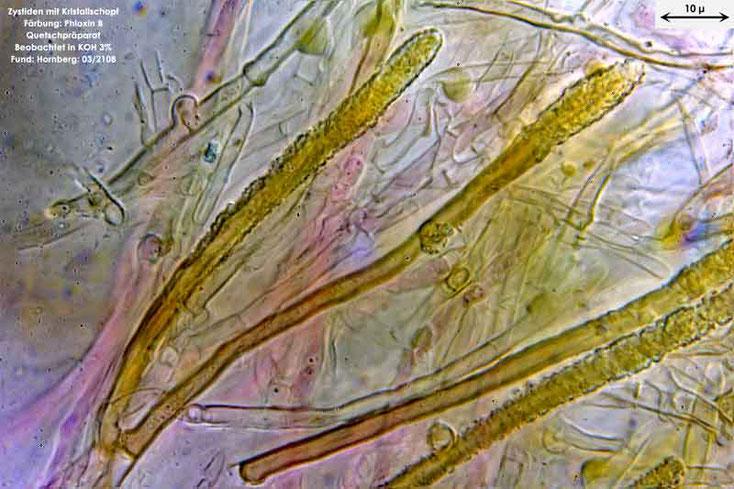 Bild 5 Zystiden von Amilosterium areolatum;  mit 1000facher Vergrößerung