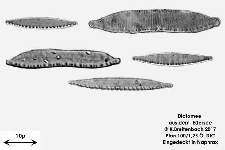 Bild 16 Diatomeen aus dem Edersee, verschiedene Aufnahmen, Art: vermutlich Nitzschia spec.