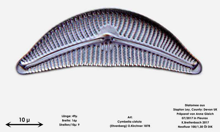 Bild 9 Diatomeen aus Slapton Ley, Devon UK; Art: Cymbella cistula (Ehrenberg) O.Kirchner 1878