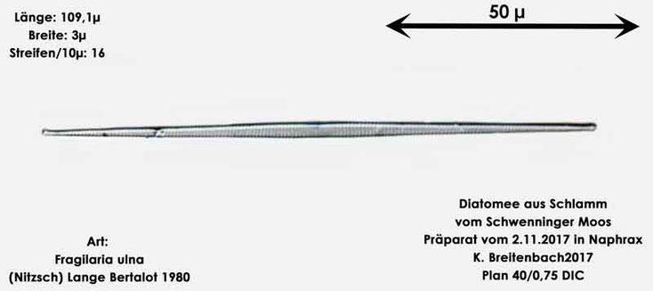 Bild 11 Diatomeen aus dem Schwenninger-Moos Art: Fragilaria ulna (Nitzsch) Lange-Bertalot 1980