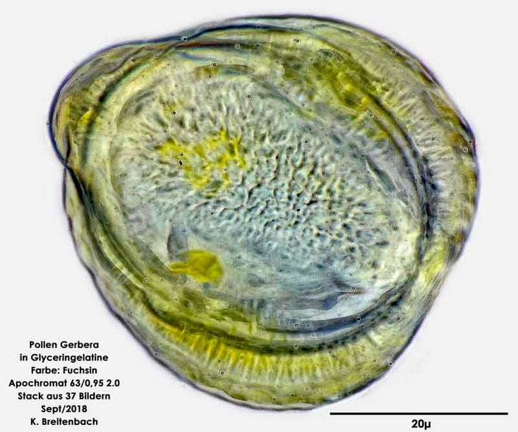 Bild 4 Pollen der Gerbera ungefärbt, Größe ca. 48*43µ
