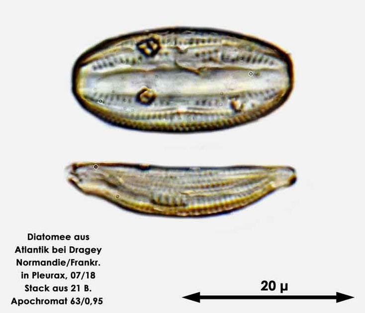 Diatomee aus dem Atlantik bei Draghey de Monton (Normandie). Gattung: Amphora sp