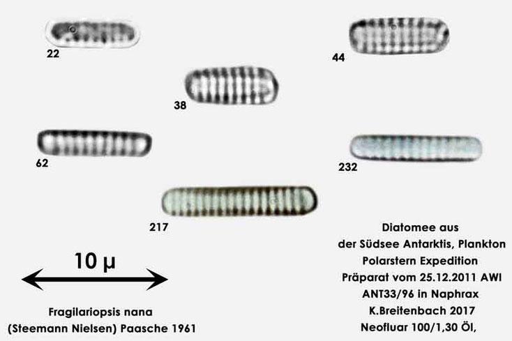 Bild 14 Diatomee aus dem anarktischen Ozean Präparat: ANT33/96; Art: Zusammenfassung: Fragilariopsis nana (Steemann Nielsen) Paasche 1961
