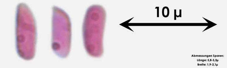 Bild 3 Sporen von Amilosterium areolatum; mit 1000facher Vergrößerung