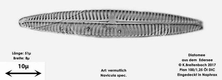 Bild 13 Diatomeen aus dem Edersee, Art: vermutlich Navicula spec.