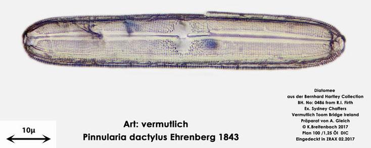 Bild 15 Diatomee aus Toomebridge Irland, Süßwasser Art: vermutlich Pinnularia dactylus Ehrenberg 1843