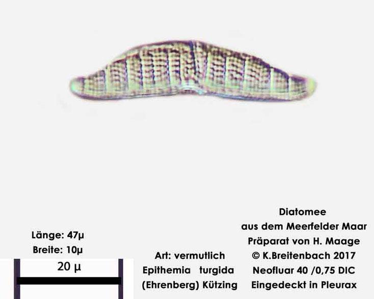 Bild 17 Diatomee aus dem Meerfelder Maar in der Eifel, Art: vermutlich Epithema turgida (Ehrenberg) Kützing