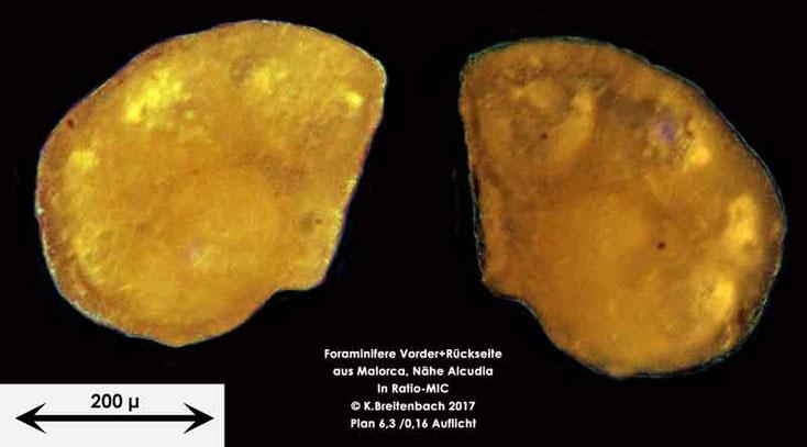 Bild 11 Foraminiferen aus Mallorca; Gattung: Ammonia spec.