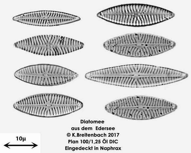Bild 12 Diatomeen aus dem Edersee, verschiedene Aufnahmen, Art: vermutlich Navicula spec.