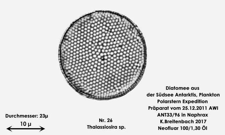 Bild 25 Diatomee aus dem anarktischen Ozean Präparat: ANT33/96; Gattung: Thalassiosira sp.