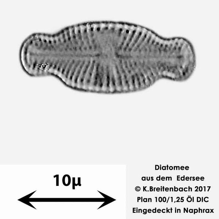 Bild 21 Diatomeen aus dem Edersee, Art: unbekannt