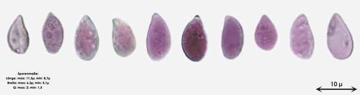Bild 4 Sporen von Cylindrobasidium evolens, Objektiv Neofluar 100Öl, Vergrößerung 1000fach,