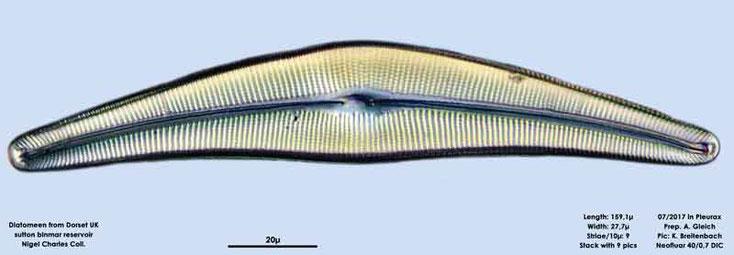 Bild 8 Diatomeen aus Dorset UK, Süßwasser. Art: Cymbella spec.