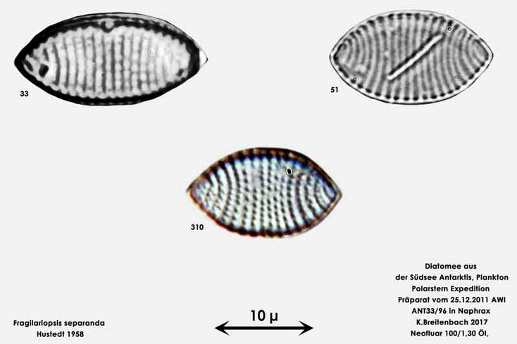 Bild 13 Diatomee aus dem anarktischen Ozean Präparat: ANT33/96; Art: Zusammenfassung: Fragilariopsis separanda Hustedt 1958