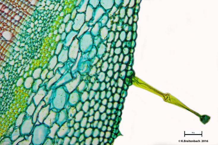 """Bild 7 Sprossquerschnitt des """"Klebrigen Salbei"""" (Salvia glutinosa) Drüsenhaar mit Epidermis"""