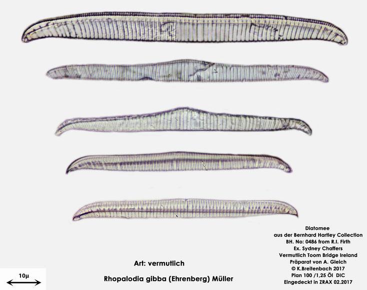 Bild 17 Diatomee aus Toomebridge Irland, Süßwasser Art: vermutlich Rhopalodia spec.