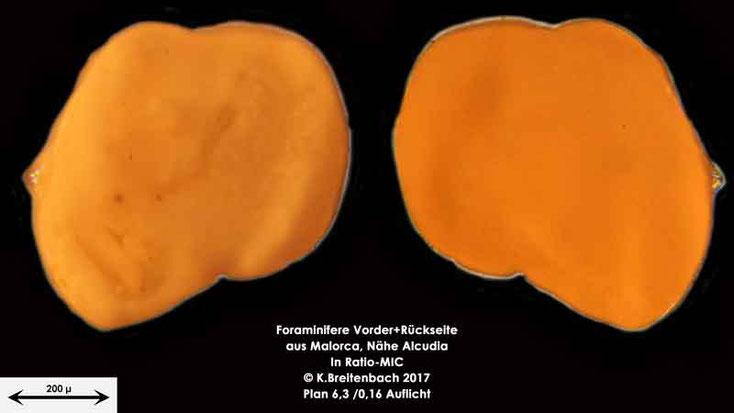Bild 18 Foraminiferen aus Mallorca; Gattung: Unbestimmt von mir