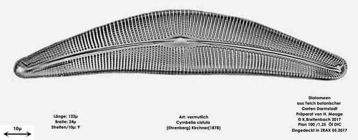Bild 10 Diatomee aus dem botanischen Garten in Darmstadt, Art: vermutlich Cymbella cistula (Ehrenberg) Kirchner(1878)