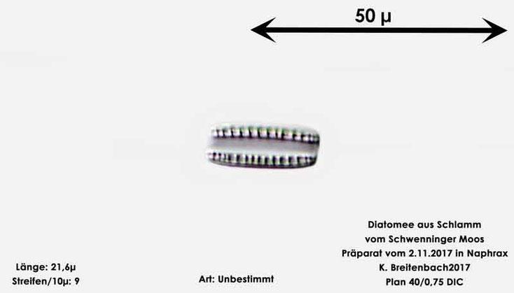 Bild 13 Diatomeen aus dem Schwenninger-Moos Gattung: Unbestimmt von mir