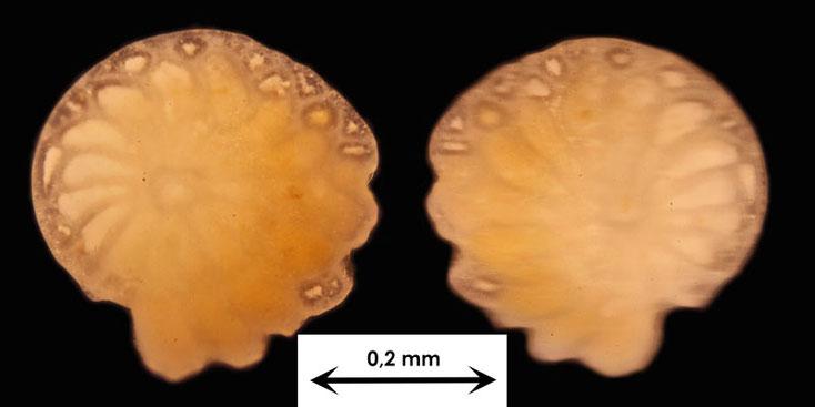 Foraminifere aus dem Sand vom Badestrand der Stadt Naha, Art unbekannt