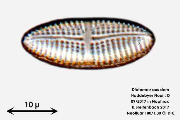 Bild 30 Diatomee aus dem Haddebyer Noor in Schleswig Holstein; Gattung: wurde von mir nicht bestimmt