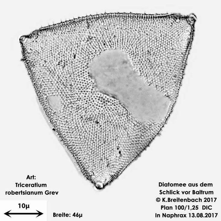 Bild 20 Diatomee aus dem Watt vor Baltrum; Art: Triceratum robertsianum Grev.