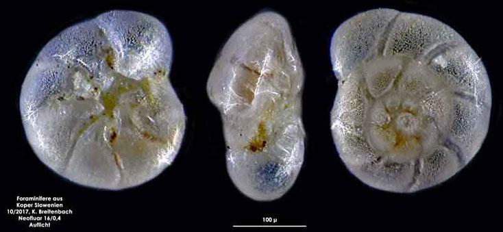 Bild 33 Foraminifere aus Koper/Slowenien Art: Ammonia beccarii (Linnaeus 1758)