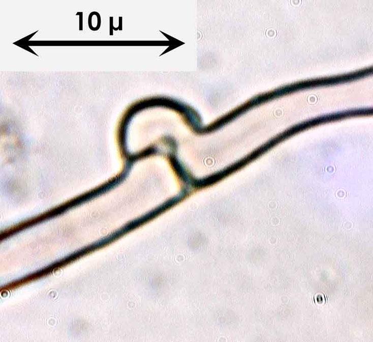 Bild 6 Schnalle an Zystide von Amilosterium areolatum; mit 1000facher Vergrößerung