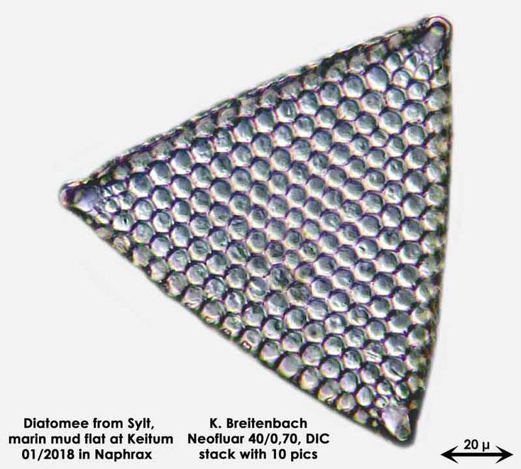 Bild 37a Diatomee aus Sylt/Keitum Watt, Art: Triceratium favus Ehrenberg 1839