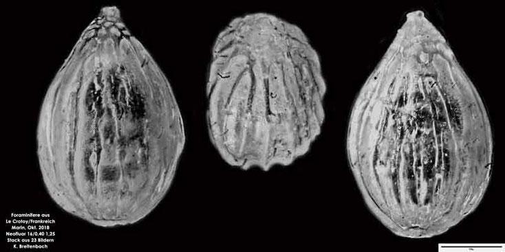 Foraminiferen, Le Crotoy, Frankreich, Normandie, Ammonia, Haynesina, Elphidium, Globorotalia, Triloculina, Quinqueloculina, Orbulina, Lobatula
