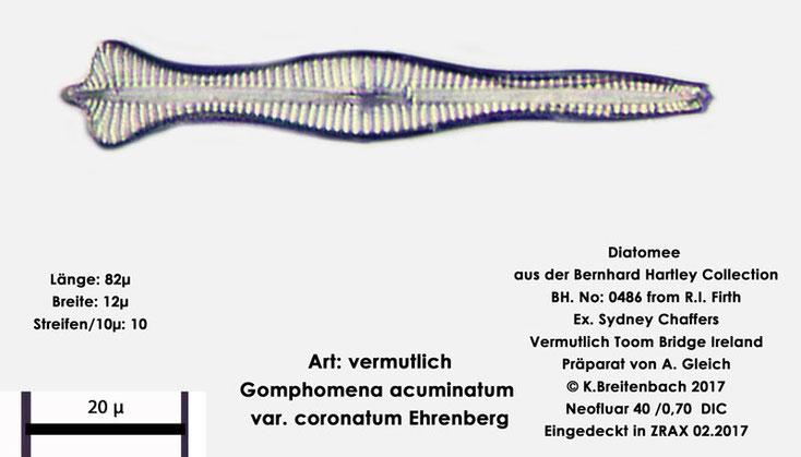 Bild 10a Diatomee aus Toomebridge Irland, Süßwasser Art: vermutlich  Gomphomena acuminatum var coronatum Ehrenberg