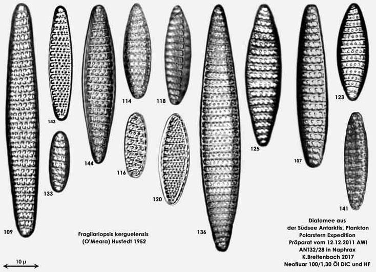 Bild 6 Diatomeen aus dem anarktischen Ozean Präparat: ANT32/28; Arten: Fragilariopsis kerguelensis (O'Meara) Hustedt 1952