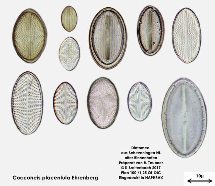 Bild 2 Diatomeen aus Scheveningen NL, Art vermutlich Cocconeis placentula Ehrenberg