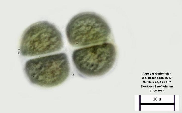 Bild 2 Algen aus unserem Gartenteich, vermutlich eine Blaualge Chroococcus spec.
