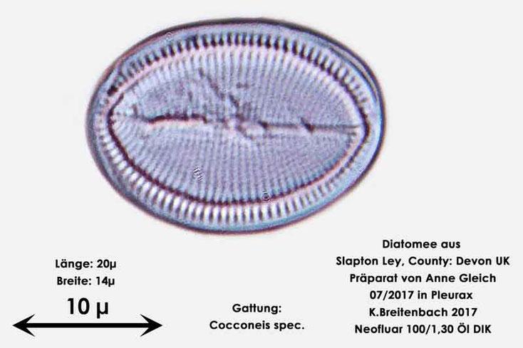 Bild 5 Diatomeen aus Slapton Ley, Devon UK; Gattung: Cocconeis spec.