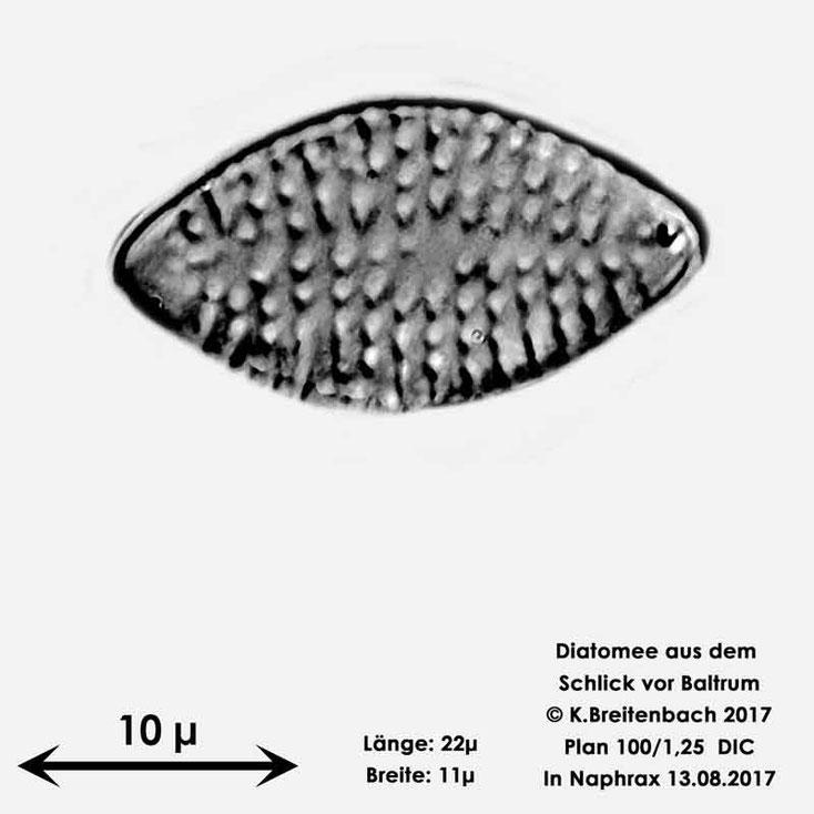 Bild 30 Diatomee aus dem Watt vor Baltrum; Gattung konnte von mir nicht bestimmt werden